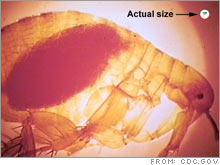Bubonic plague, carried by fleas like the one shown here, is not the disease you should be worried about.