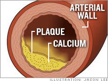 Plaque causes heart disease but it is hard to measure. Calcium, a marker for plaque, shows up on body scans. A high calcium score means an increased risk of heart disease.